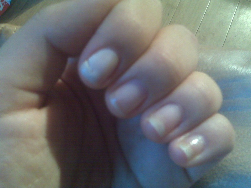 Before Calgel Manicure